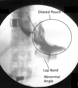 Slipped Gastric Band