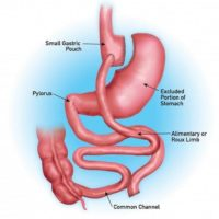 gastric bypass anatomy
